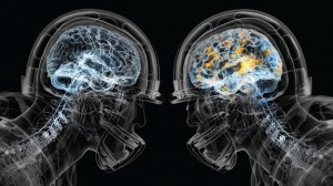 Normal Brain vs. Concussed Brain